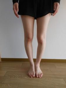 ランニング 脚が太くなる O脚 改善